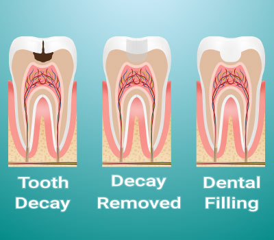 Dental Fillings Greenwich CT