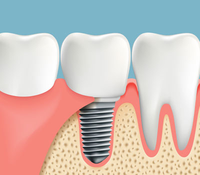 Dental Implants Greenwich CT