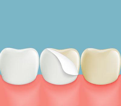 Dental Veneers Greenwich CT